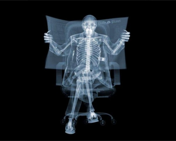 X-ray_52