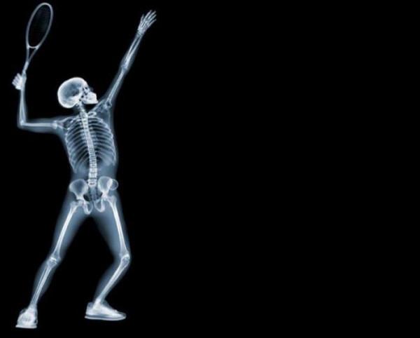 X-ray_53