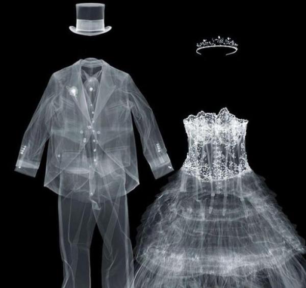 X-ray_55