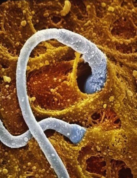 spermatozoid-cheloveka-foto