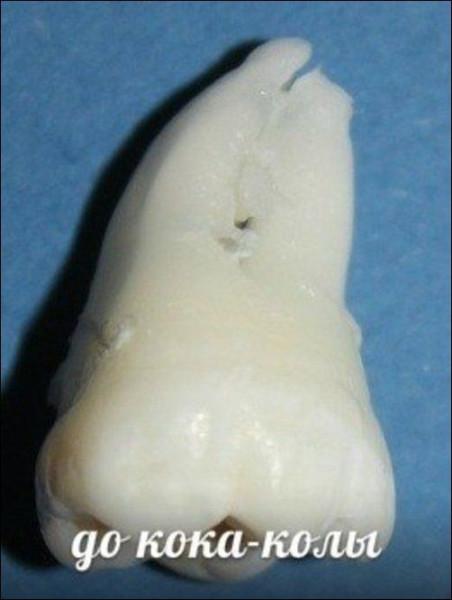 Teeth_04