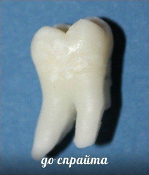 Teeth_08