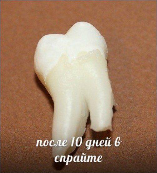 Teeth_10