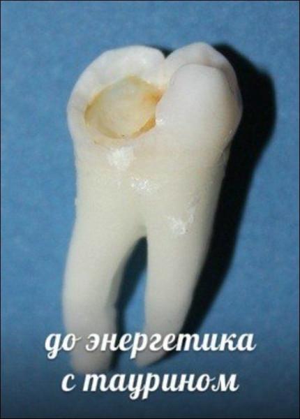 Teeth_11