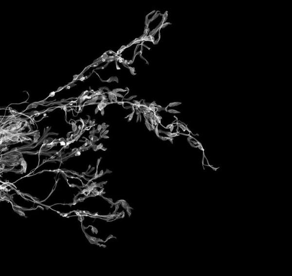 014_rentgen