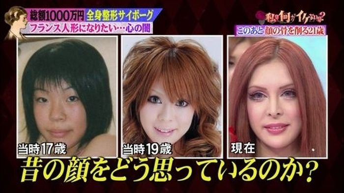 japanese_woman_gets_plastic_surgery_02