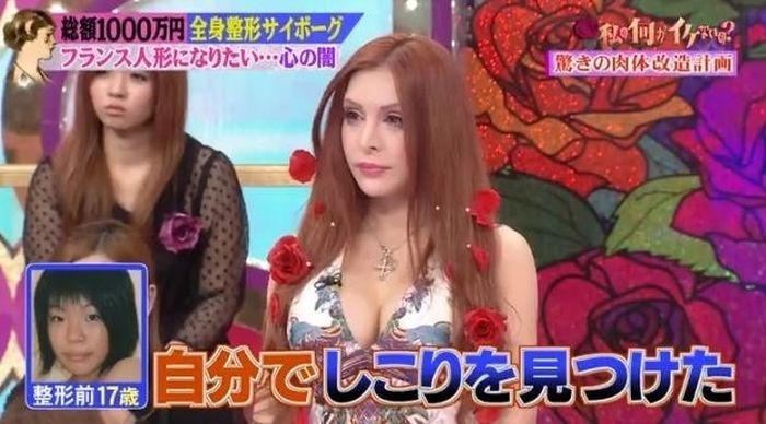 japanese_woman_gets_plastic_surgery_07