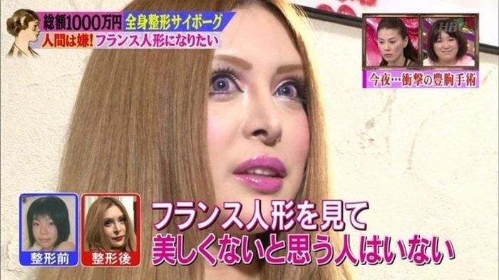 japanese_woman_gets_plastic_surgery_09