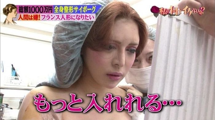 japanese_woman_gets_plastic_surgery_12