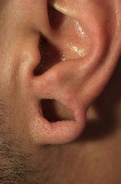 tonnel_ears_05