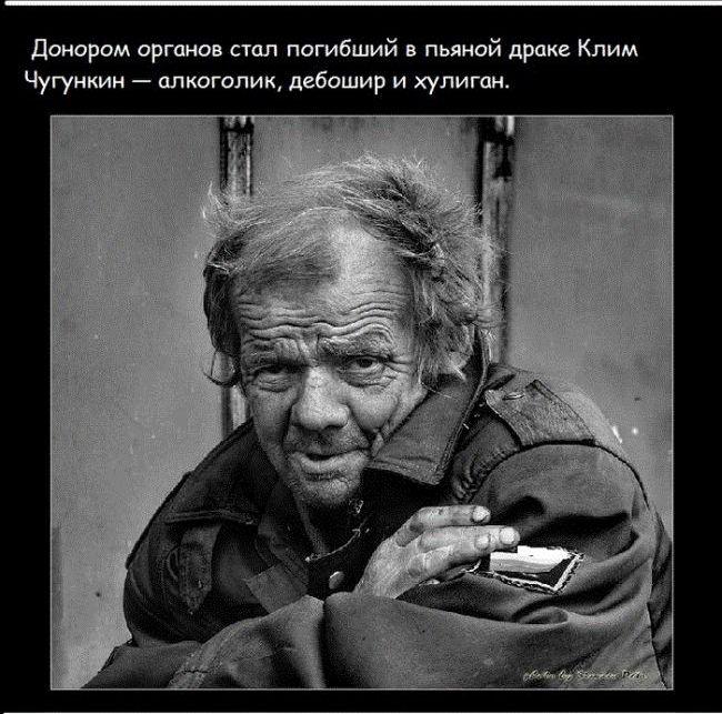 sobachie_serdce_11