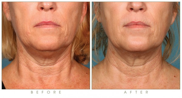synergy_before-after-kybella-double-chin-treatment-4b.jpg