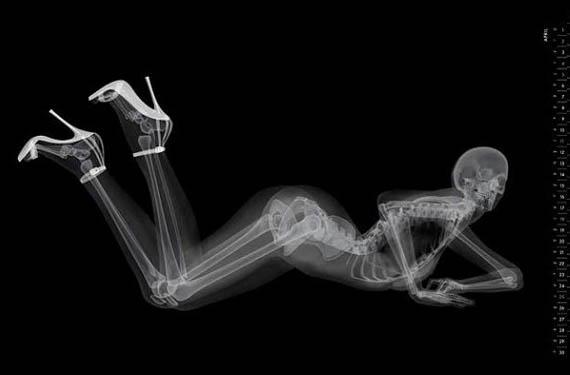 Erotic Radiology
