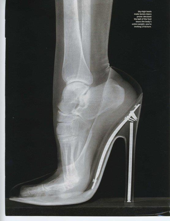 Эротичные рентгеновские снимки
