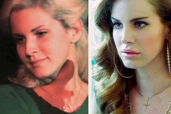 Lana Del Rey-Plastic-Surgery