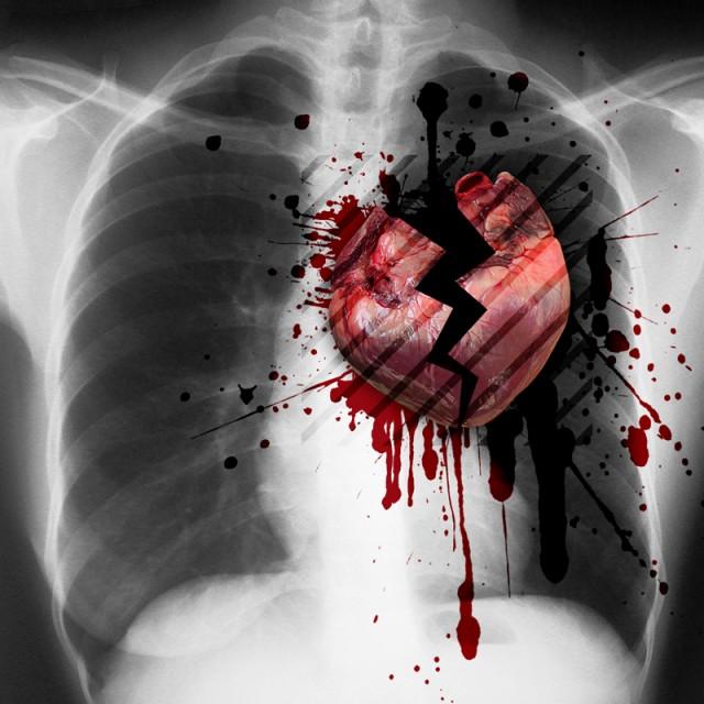 Картинки сердце разрывается от любви