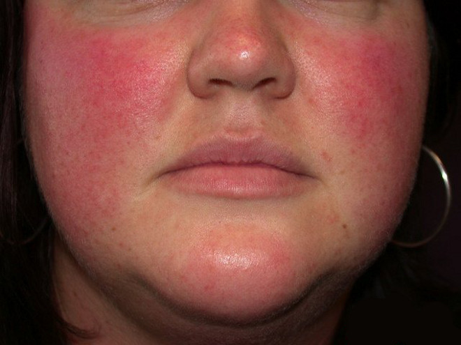 Как сделать болячки на лице