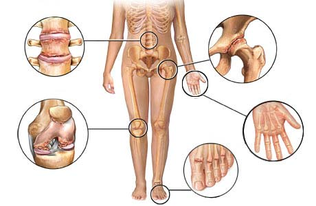 физиолечение при артрозе тазобедренного сустава