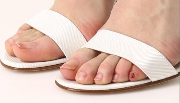 toenails_1