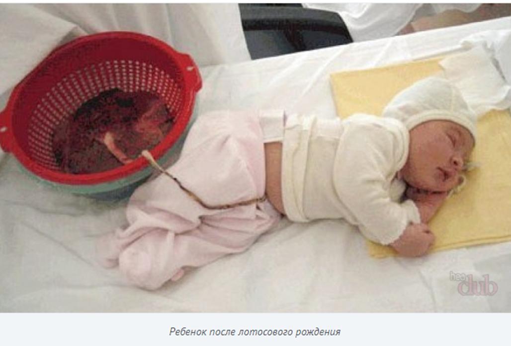 Рис.5 Источник: http://heaclub.ru/lotosovye-rody-rebenok-i-placenta-lotosovoe-rozhdenie-mnenie-vrachej-otzyvy