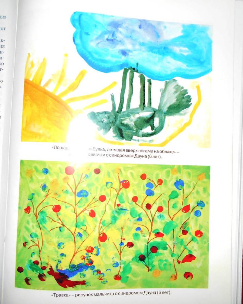 """Рис. 4. Рисунки детей с синдромом Дуна, приведенные в книге """"Синдром Дауна"""" (под ред. проф. Ю.И. Барашнева)."""