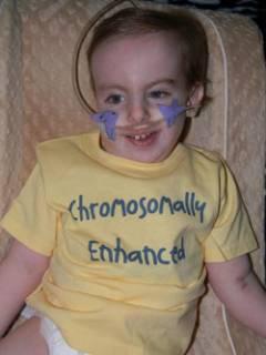 Фото: мальчик с трисомией по хромосомам 18 пары, любимый своими родителями и другими детьми в семье (источник: http://www.lifesite.net/news/trisomy-18-bella-santorum-and-the-truth-about-miracles)