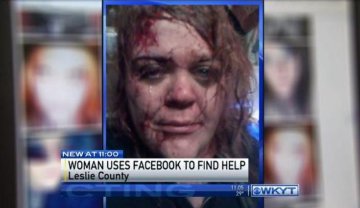 Фейсбук пас жизнь женщине
