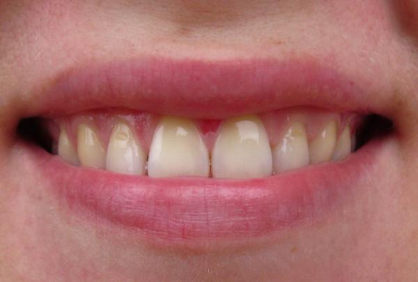 Лак средство для отбеливания зубов