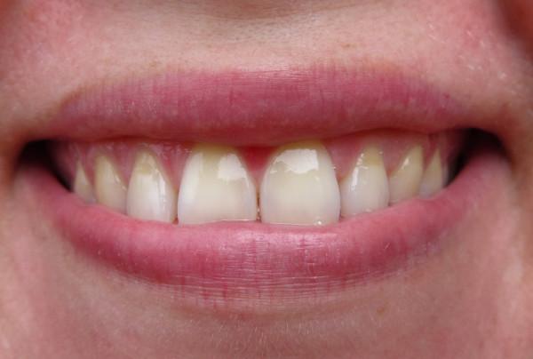 отбеливание зубов iherb
