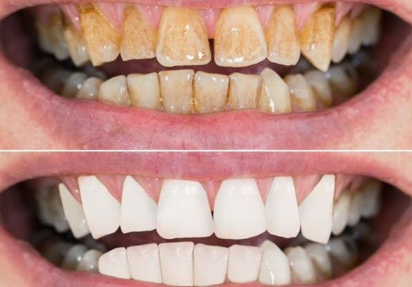 отбеливание зубов мой зубной