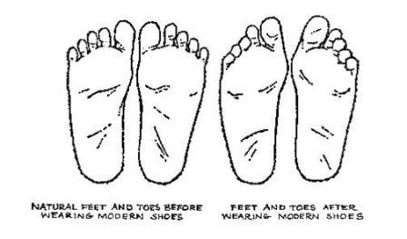 Foot%20Shape%20Change%20-%20sm