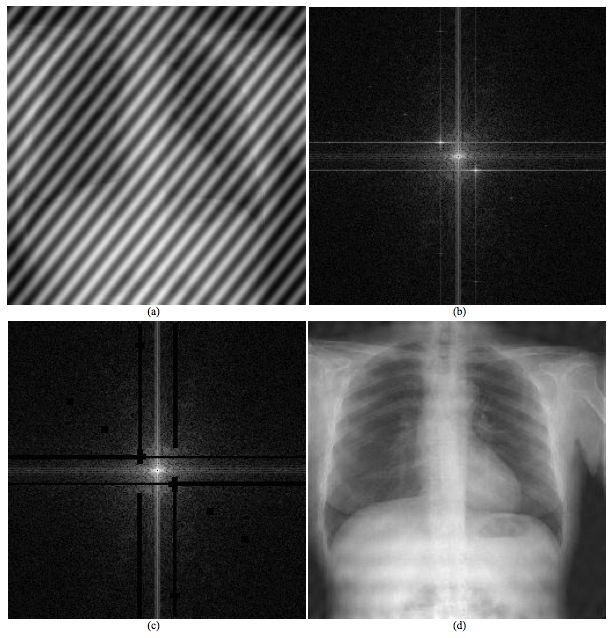 Use_of_Fourier_transformation_chest_radiography